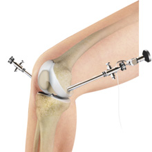 Arthroscopy of the Knee Joint